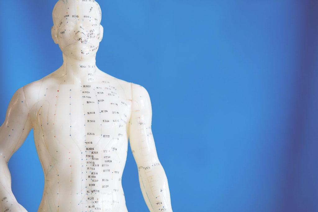 Physiotherapie_Born_Akupunktur